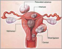 Mi a méh szarkóma és hogyan kezelik - Angioma - April
