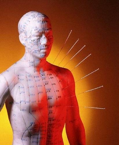 Acupuncturefg
